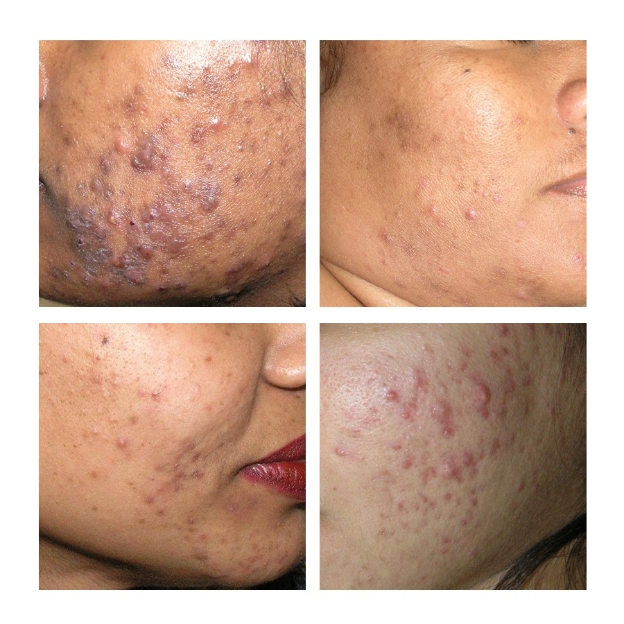 auckland laser hair removal review