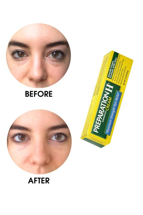 eye cream for dark circles and puffiness reviews