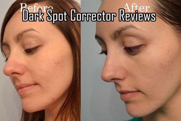 garnier dark spot corrector review acne scars